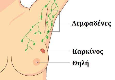 Breast Cancer Lymphnodes Greek