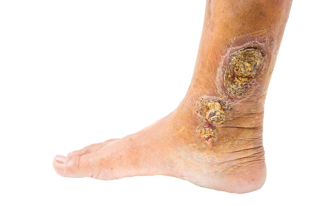Leg Ulcer 215050180