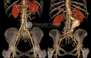 What is Abdominal Aortic Aneurysm